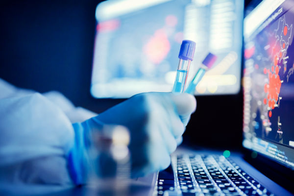 PCR Test To Release from Quarantine for Travel UK